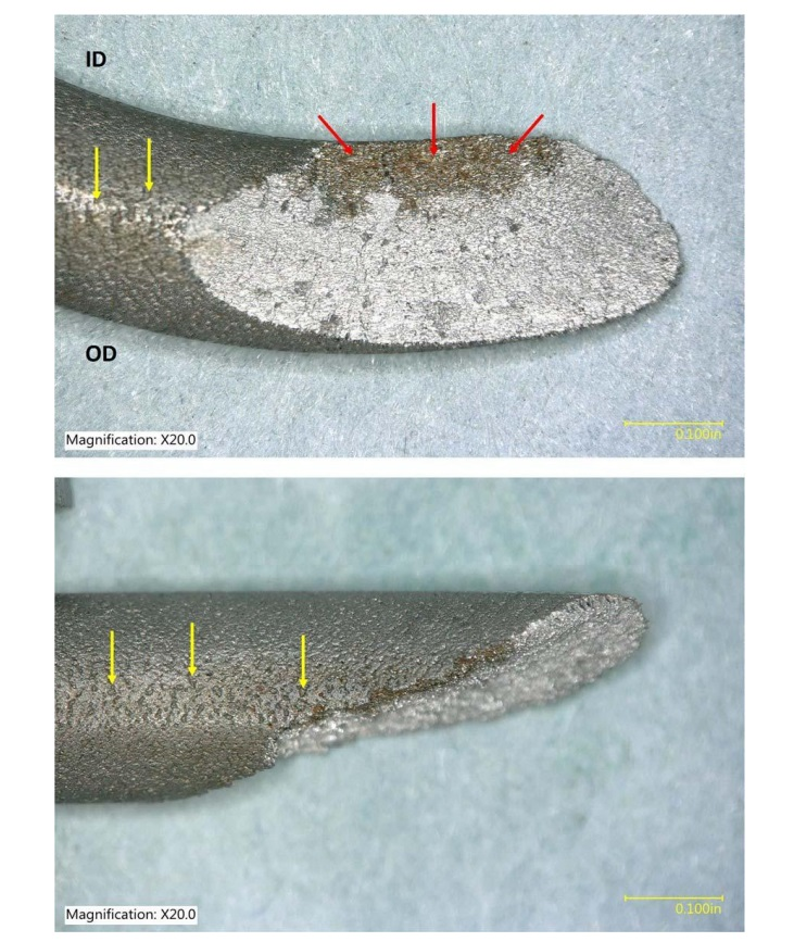 Digital microscope images of the wire fracture surface as viewed looking down on the top of the coil (top) and from the ID of the coil (bottom). The red arrows point to a thumbnail shaped stain on the fracture surface. The yellow arrows point to openings on the spring wire surface.(Credit: NTSB)